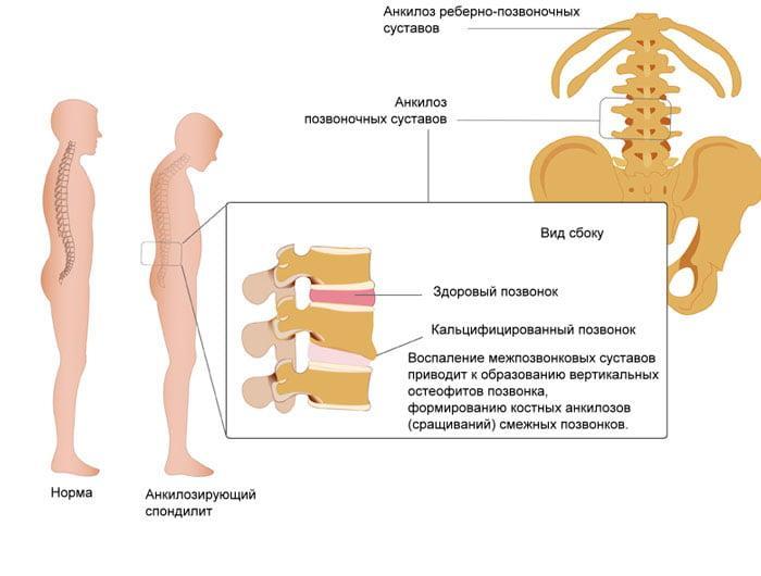 Введение лекарств в сустав при спондилоартрите позвоночника ломота в суставах пальцев ног