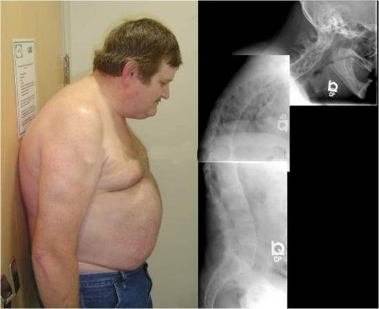 Болезнь Бехтерева - анкилозирующий спондилит: характер заболевания