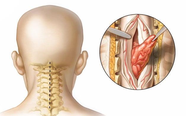 Опухоли спинного мозга: симптомы, виды и перспективы лечения