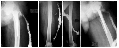 Гной из шва после эндопротезирования: лечение парапротезных инфекций: