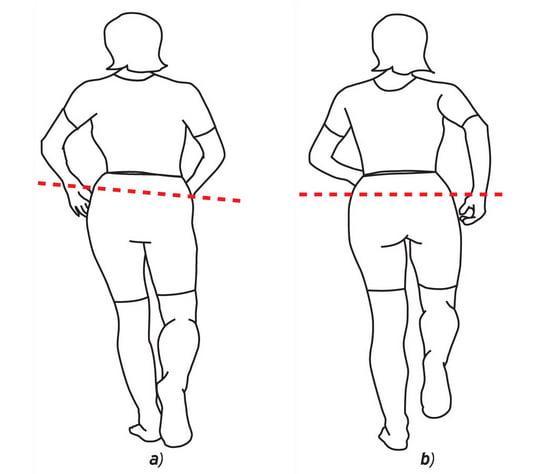 Разница в длине ног после эндопротезирования тазобедренного сустава: причины и исправление
