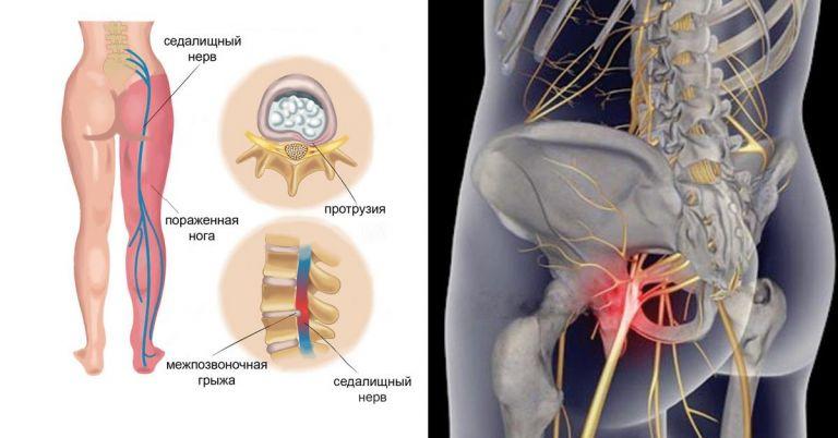 От чего может болеть седалищный нерв