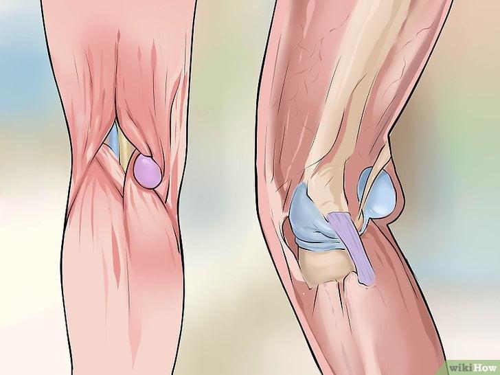 Киста Беккера – симптомы и лечение