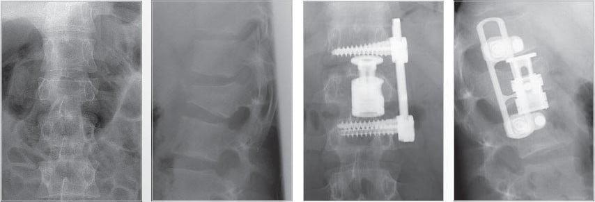 Качественные импланты для позвоночника, какие они?