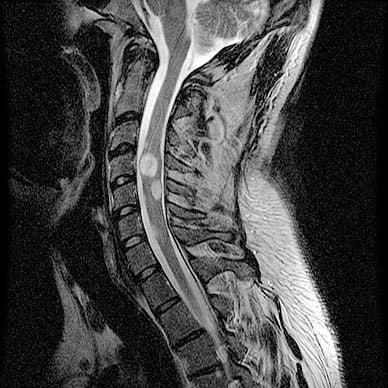 Операции на спинном мозге: цены, виды, реабилитация и последствия