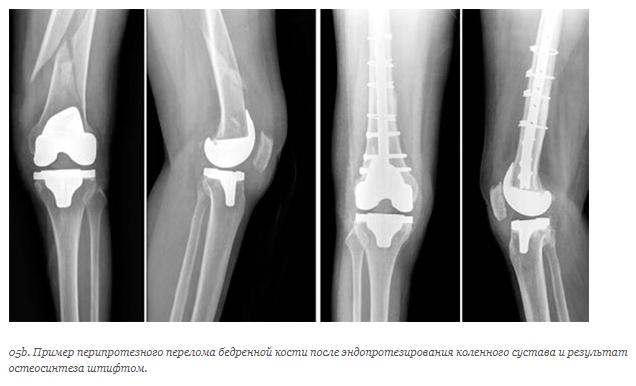 Перипротезные переломы и трещины костей при эндопротезировании суставов