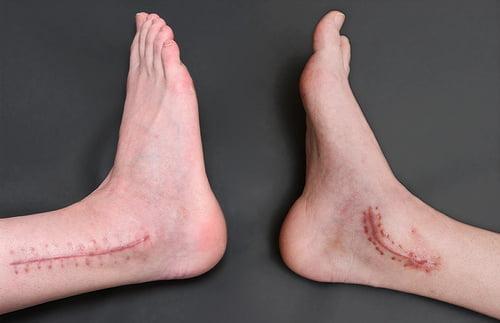 Операция замыкания голеностопного сустава как настаивать адамово яблоко для суставов