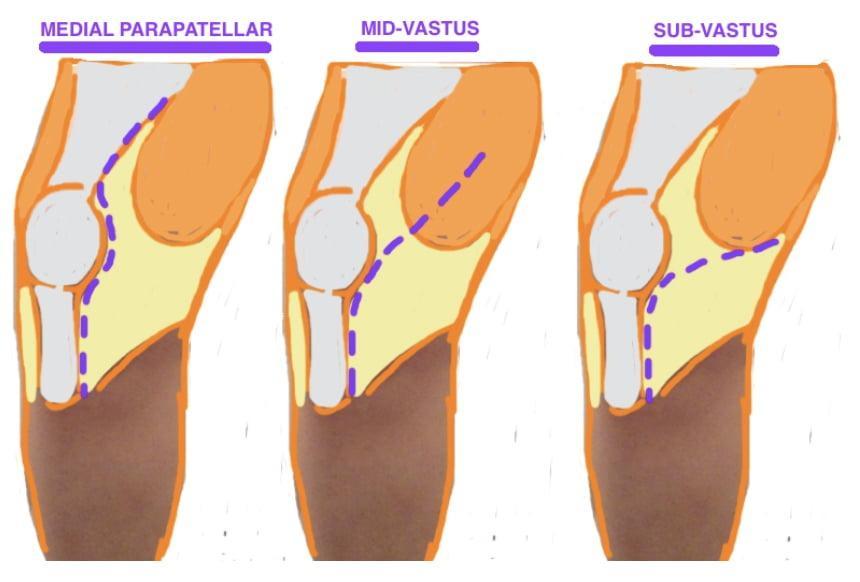 Что такое артротомия коленного сустава: техники операции