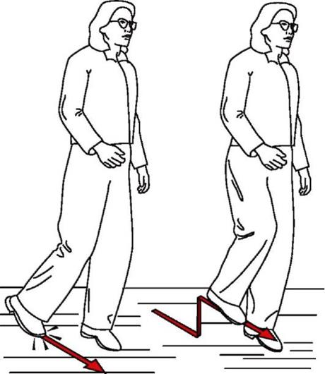 Повреждение седалищного нерва после эндопротезирования тазобедренного сустава: причины, симптомы, как лечить