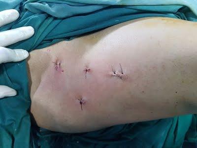 Импинджмент-синдром тазобедренного сустава: последствия развития, операция
