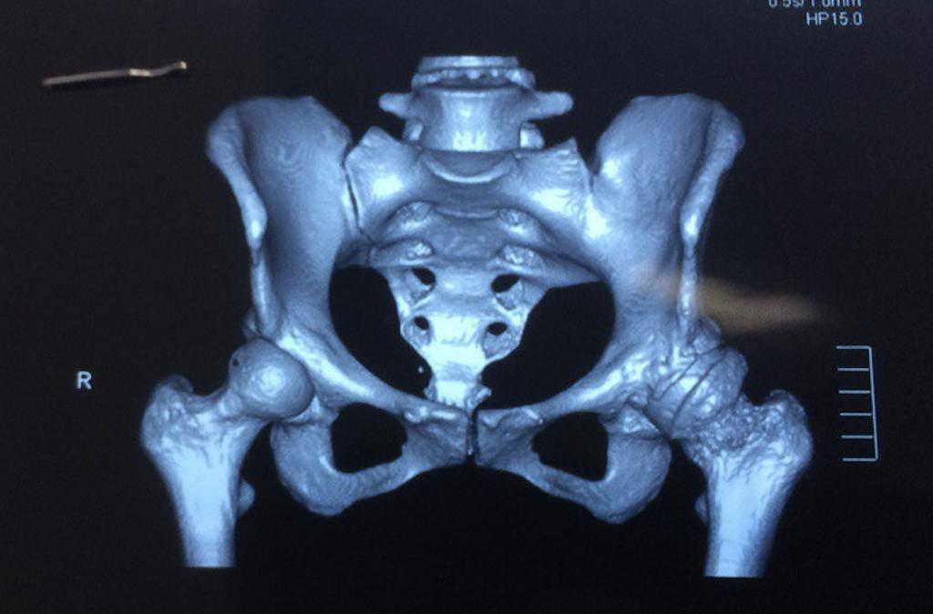 Особенности эндопротезирования с остеомиелитом кости в анамнезе: риски и прогноз