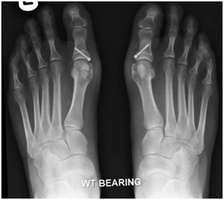 Хирургическое лечение вальгусной деформации стопы: операция по удалению шишки