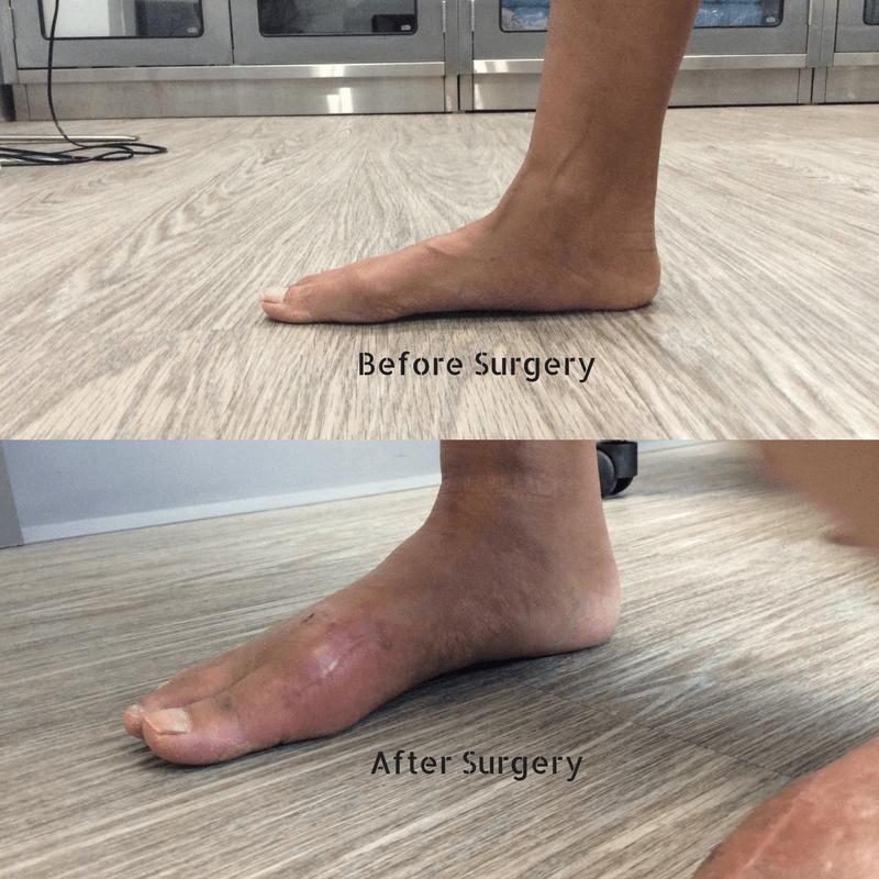 Какие операции делают при разных видах плоскостопия у взрослых