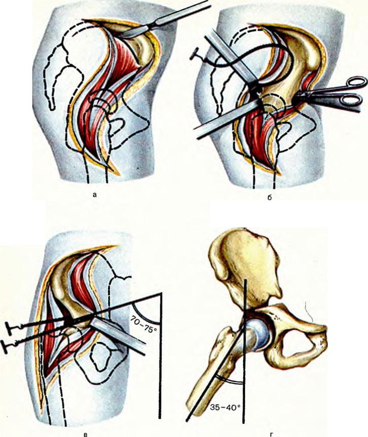 Остеотомия бедренной кости тазобедренного сустава: показания, виды операции и восстановление