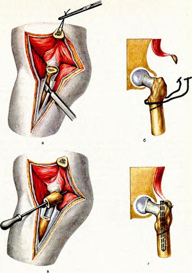Остеосинтез при переломе шейки бедра: преимущества и недостатки