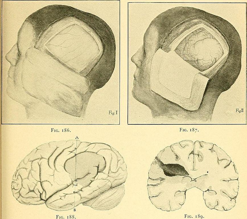 Một giải phẫu sọ loại bỏ một phần xương sọ để tiếp cận bộ não, hoặc để cho não có không gian trống khi bị sưng lên. ( Internet Archive Book Images )