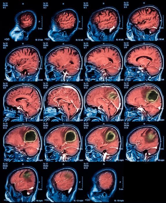 Операция по удалению абсцесса головного мозга: симптомы, лечение и последствия