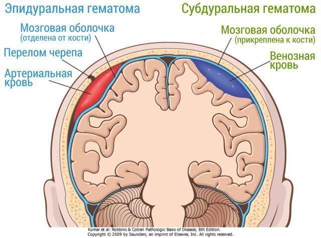 Внутримозговые гематомы: виды, симптомы, лечение и операции
