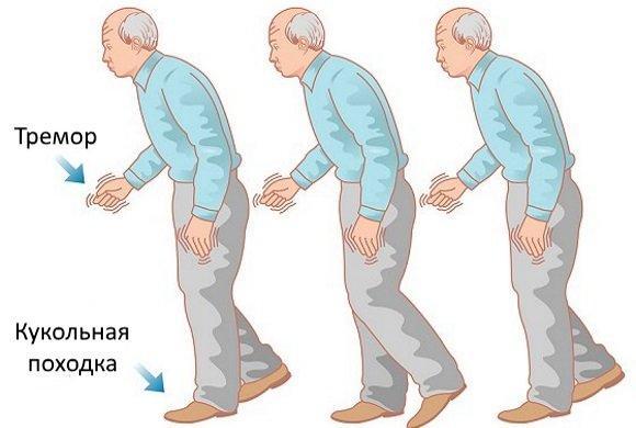 Болезнь Паркинсона: симптомы, статистика, стадии, лечение и операция