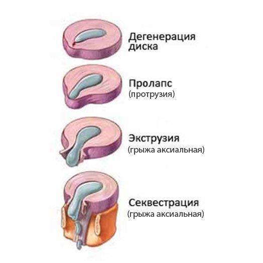 Симптомы и лечение грыжи грудного отдела позвоночника – быть или не быть операции?