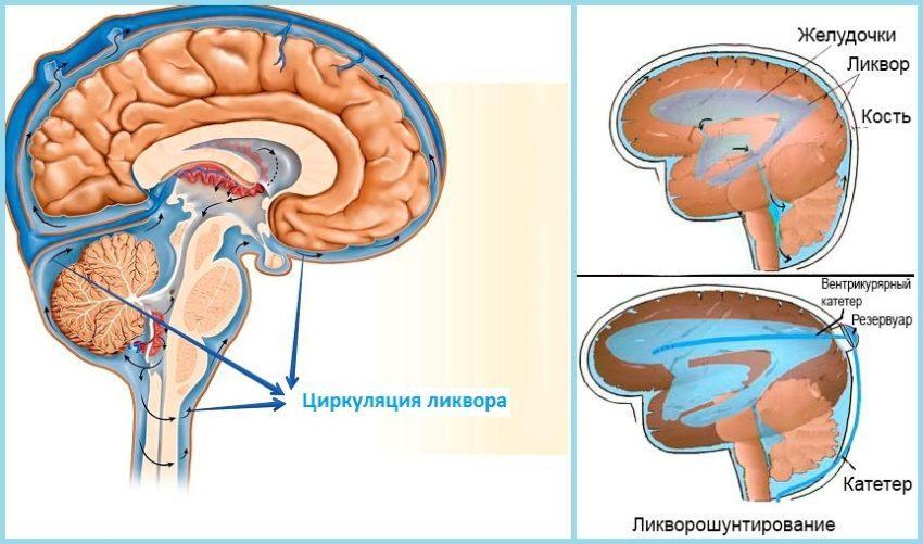 Гидроцефалия головного мозга: признаки, диагностика, лечение, операция, цены
