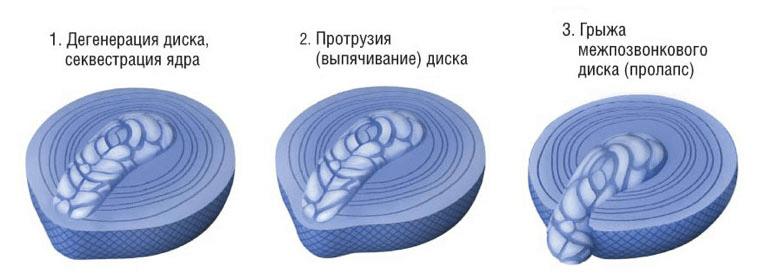 Операция при протрузии дисков поясничного отдела позвоночника