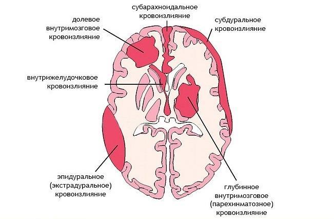 Геморрагический инсульт: симптомы, диагностика, лечение и операции