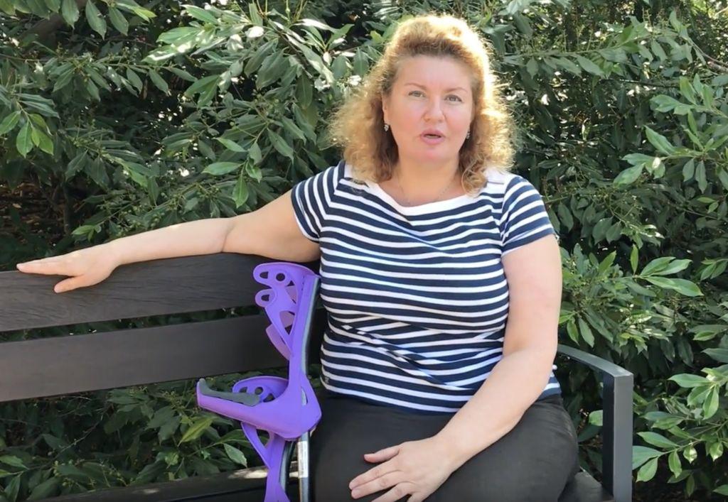 Шадчнева Виолетта, 53 года. Частичное (одномышелковое) эндопротезирование коленного сустава и восстановление