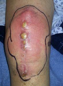 Cвищ после эндопротезирования коленного или тазобедренного сустава: причины, что делать и как лечить?