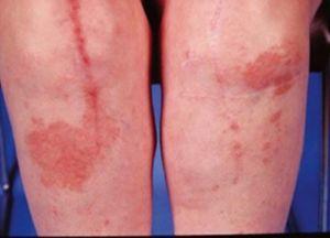 Аллергия на эндопротезы cуставов: как узнать реакцию на импланты