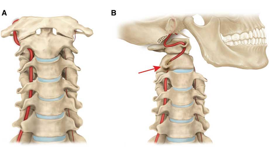 Операция при остеохондрозе позвоночника: показания, виды, реабилитация