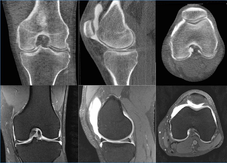 Остеоартроз коленного сустава: все признаки, диагностика и способы лечения