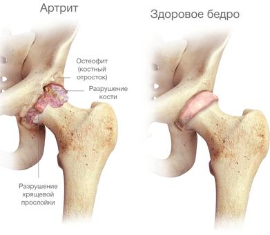 Факты об артрите тазобедренного сустава: симптомы и лечение заболевания