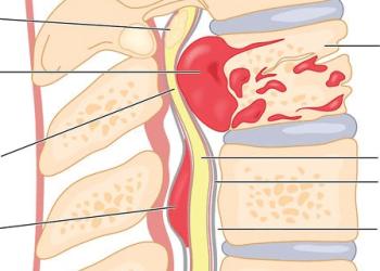 Опухоль позвоночника: виды новообразований, симптомы и жалобы, лечение и операция удаления