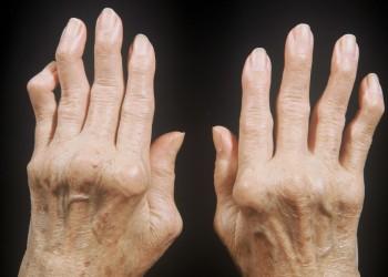 Эндопротезирование суставов при ревматоидном артрите: влияние диагноза на операцию