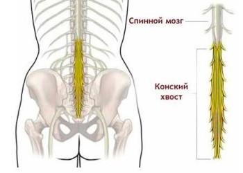 Симптомы и лечение межпозвоночнойгрыжи поясничного отдела: помогает ли что-то, кроме операции?