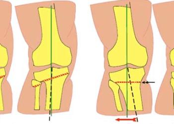 Корригирующая остеотомия коленного сустава: показания, виды операции и реабилитация