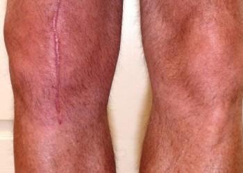 Контрактура коленного сустава после эндопротезирования: когда не разгибается колено