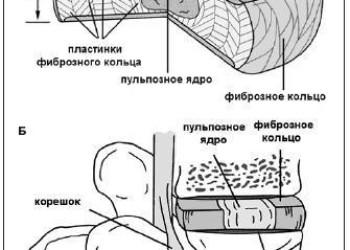Протрузия дисков поясничного отдела позвоночника: что такое, диагностика, лечение и операция