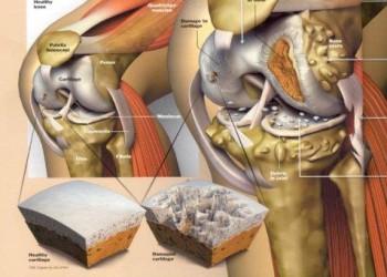 Артроз коленного сустава: что это, симптомы и мифы о лечении