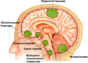 Рейтинг и цены нейрохирургических клиник: гамма-нож и кибер-нож в России, Германии, Израиле и Чехии