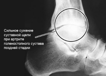Операции при артритах голеностопного сустава: виды, показания и противопоказания