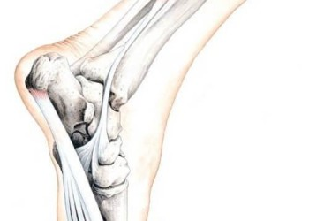 Стоимость операций на голеностопном суставе
