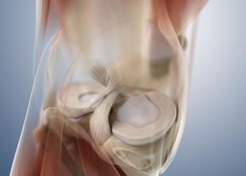 Виды резекций мениска коленного сустава:список показаний и последствия