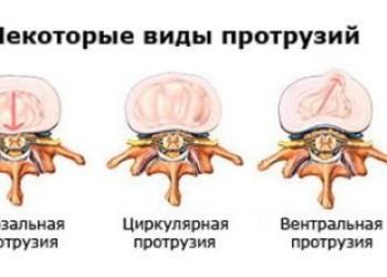 Диффузная грыжа межпозвонкового диска: что такое, отличия от других, как лечить