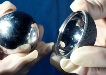 Задний доступ при малоинвазивном протезировании тазобедренного сустава