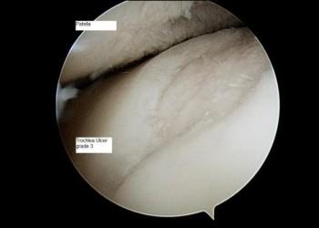 Артроз коленного сустава: что это, стадии, симптомы и мифы о лечении