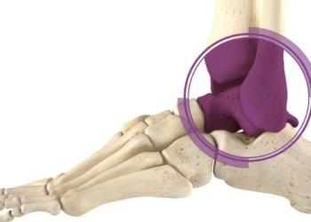 Виды эндопротезирования голеностопного сустава: показания, осложнения