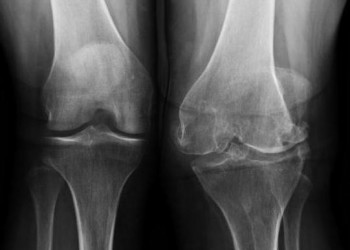 Операции при артрите коленного сустава: виды, стадии, подготовка и реабилитация