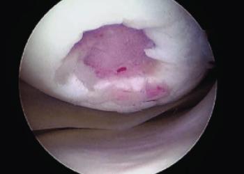 Мозаичная хондропластика коленного сустава: микрофрактурирование и пересадка хряща